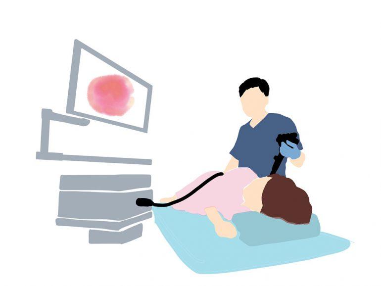 12.1. 胃カメラ検査の対象となる方